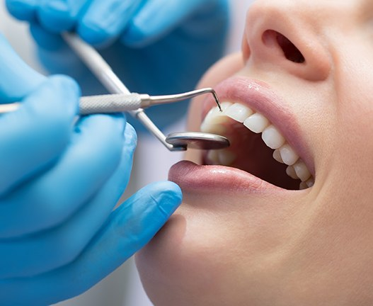 woman getting periodontal maintenance
