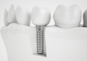drawing of a dental implant