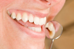 dentist in beaumont recommends six month visits